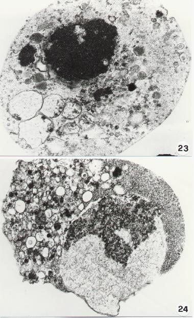 Morphological Aspects Of Apoptosis
